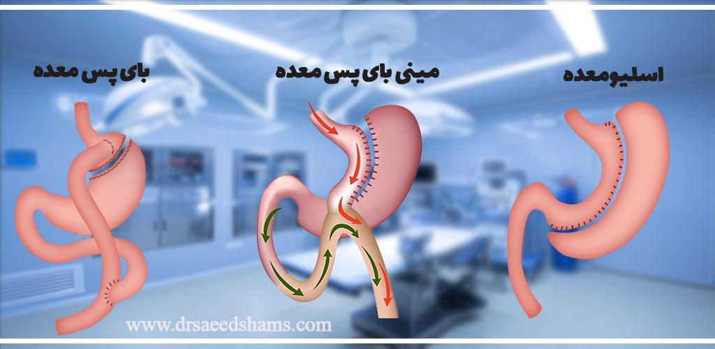 مقایسه عمل اسیلو با سایر روش های چاقی