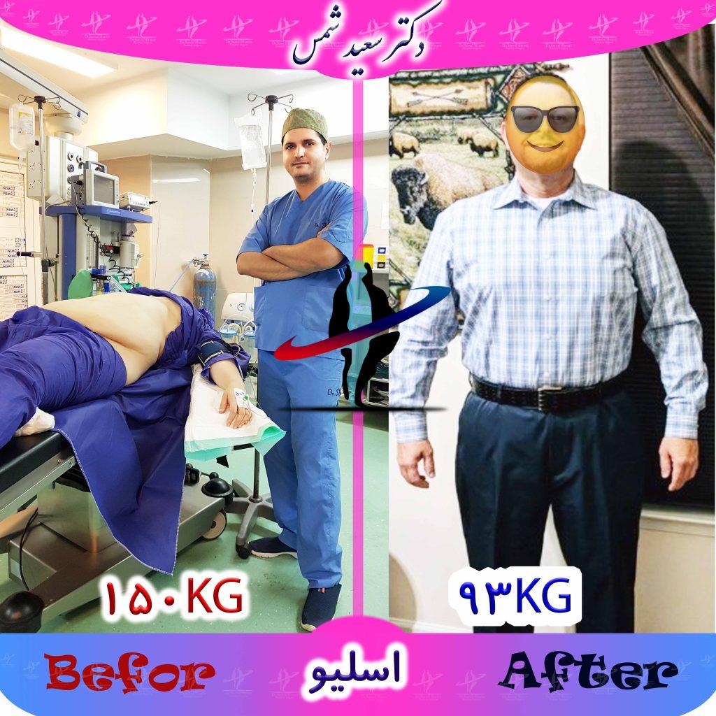 بهترین جراح چاقی