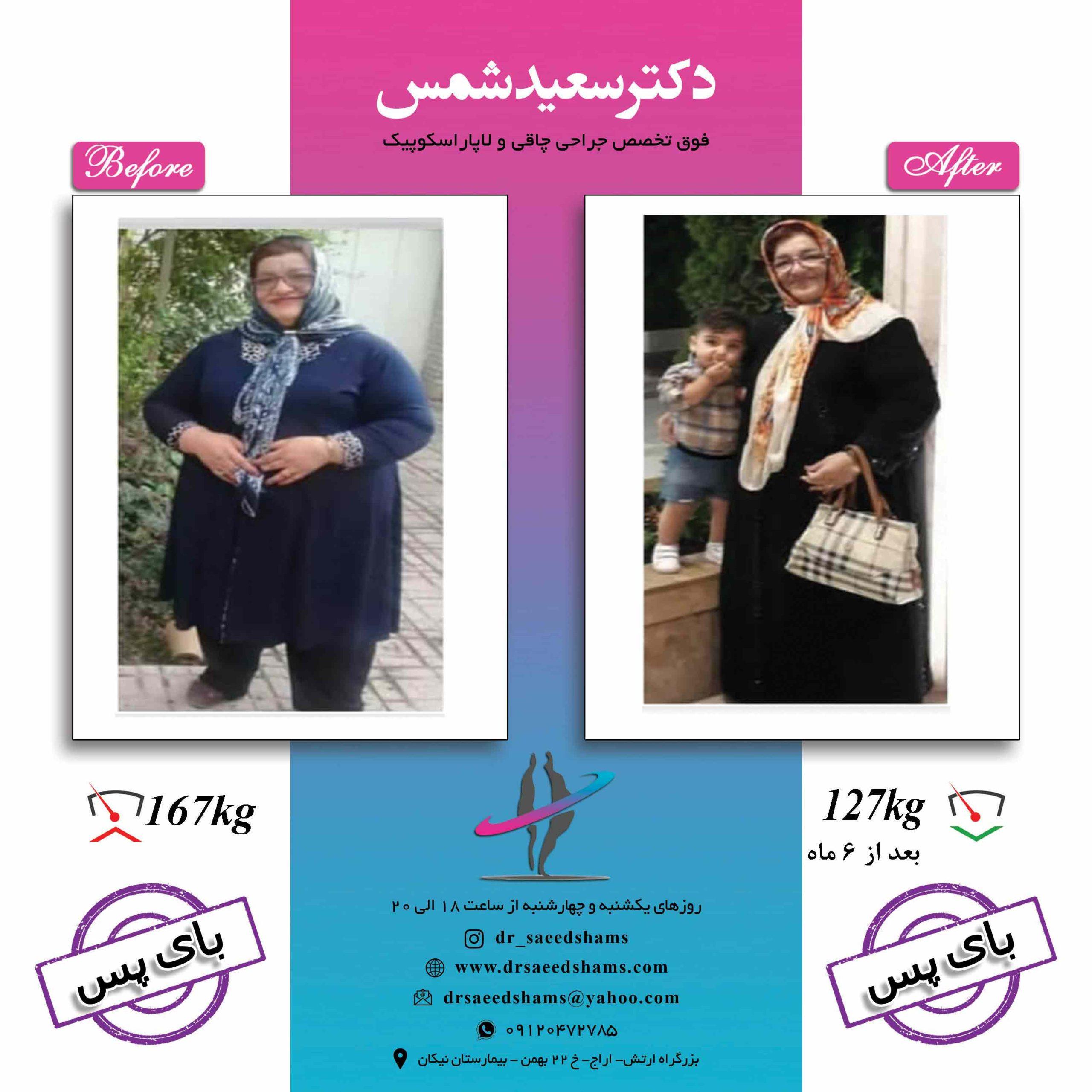 بهترین جراح چاقی ایران