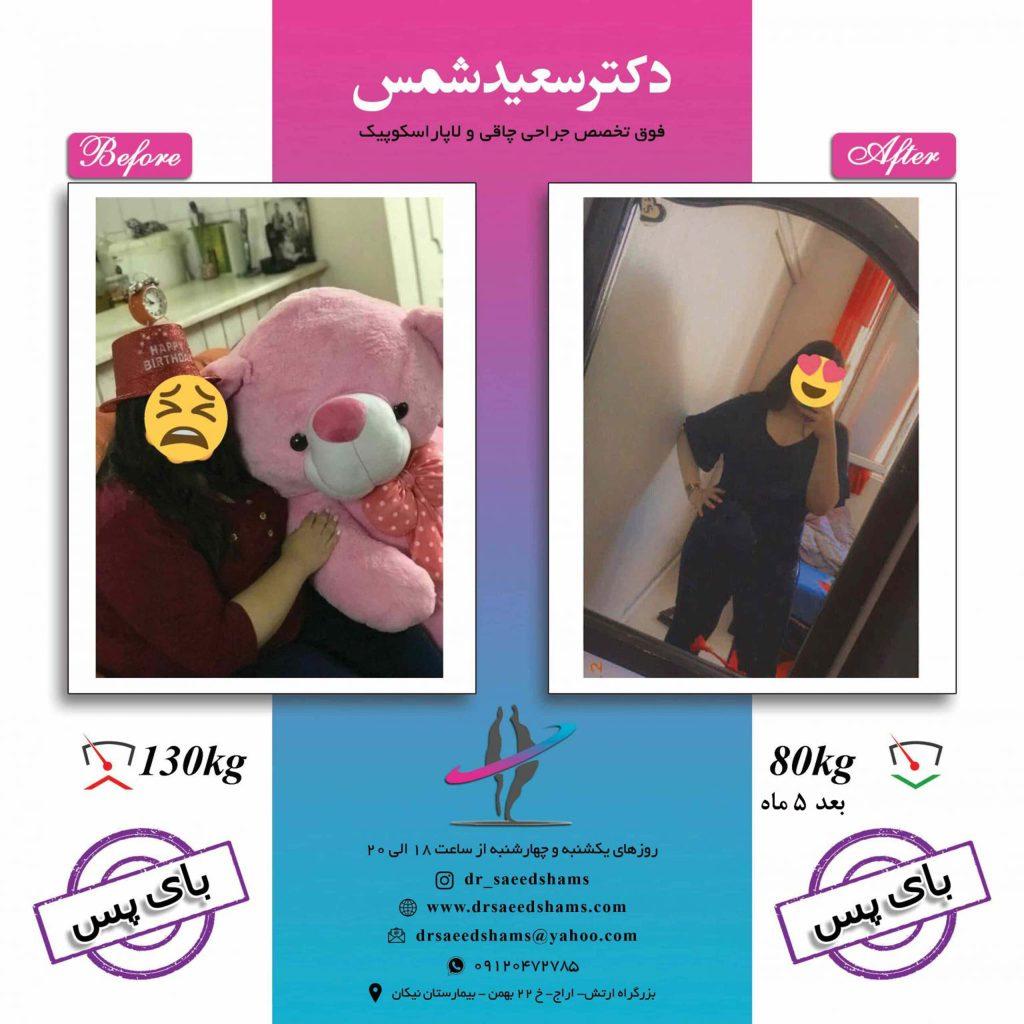 تصاویر قبل و بعد جراحی چاقی