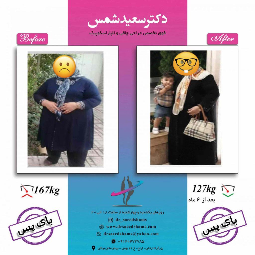 تصاویر قبل و بعد عمل بای پس