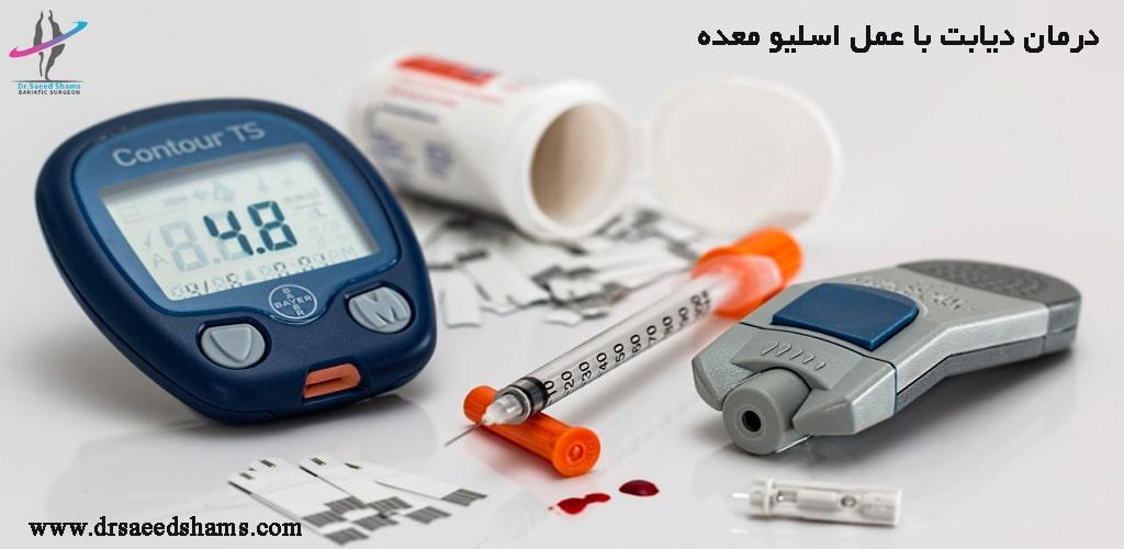 درمان دیابت نوع 2 با عمل جراحی
