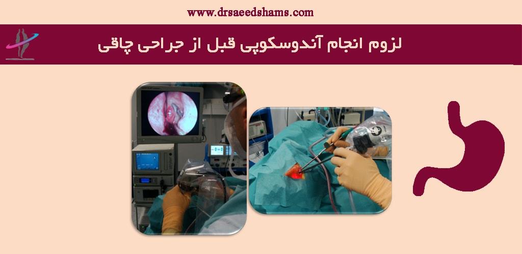 لزوم انجام آندوسکوپی قبل از جراحی