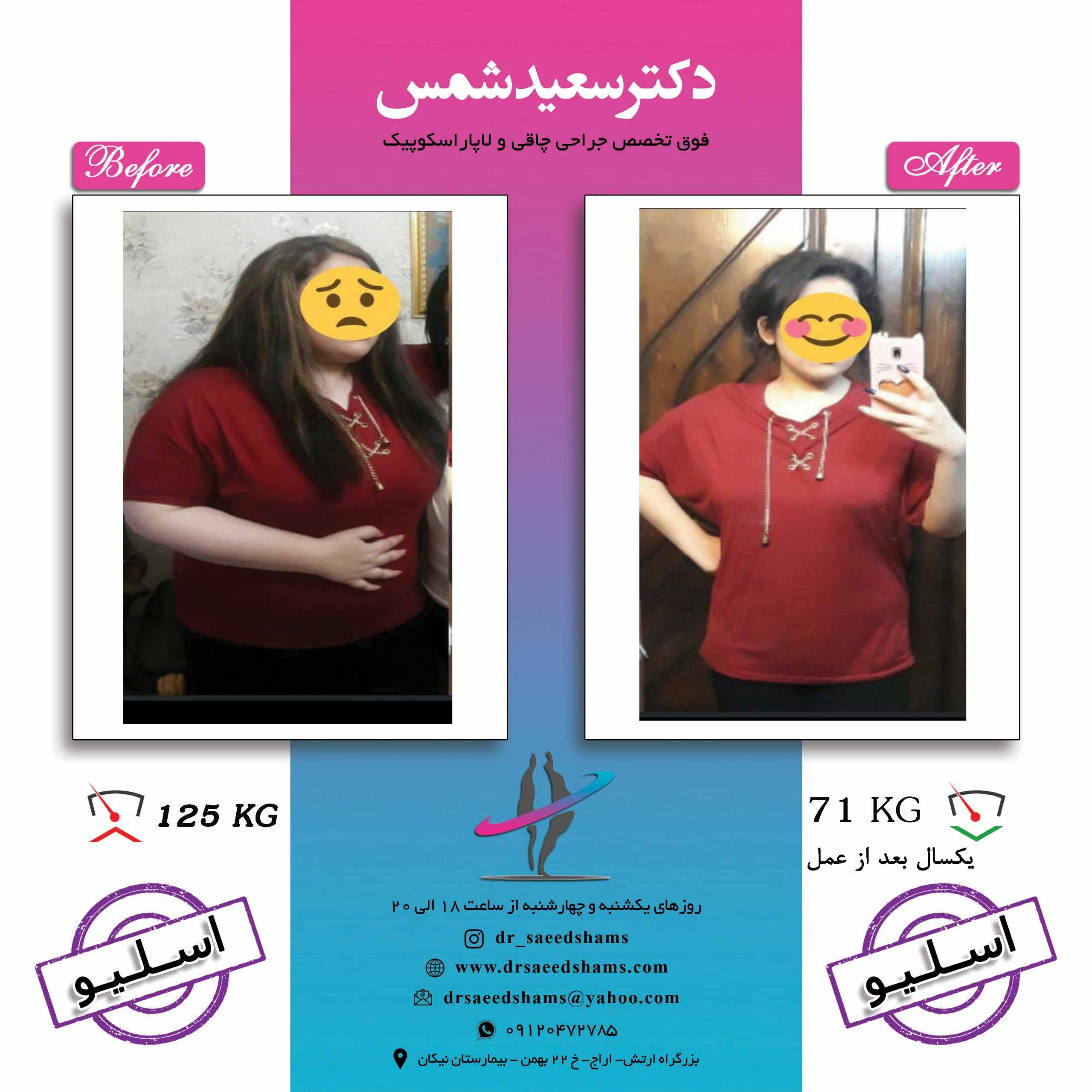 تصاویر قبل و بعد جراحی اسلیو معده