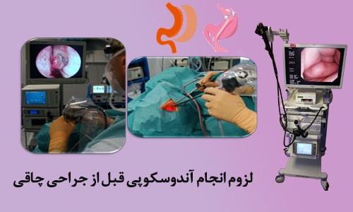 آندوسکوپی قبل از جراحی چاقی