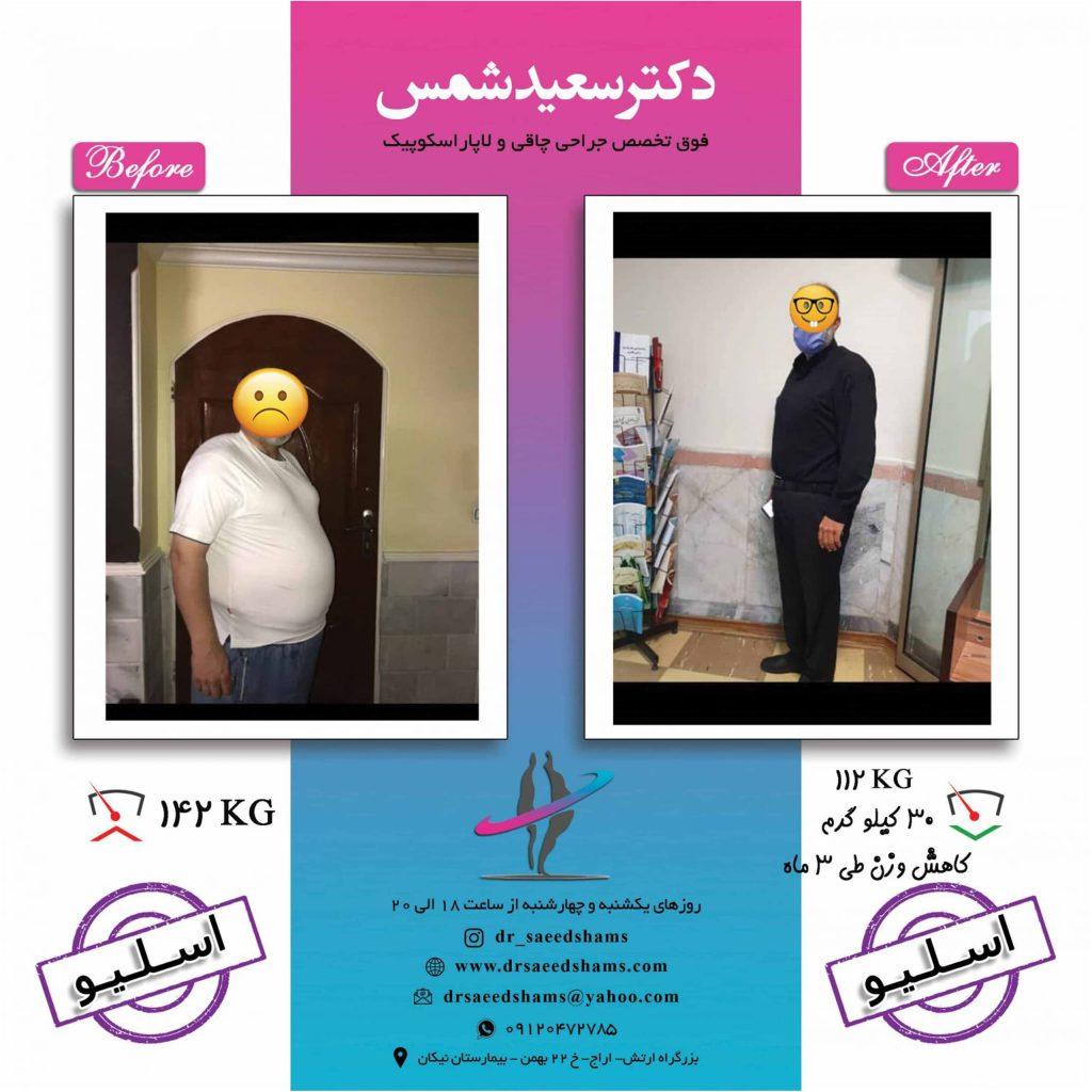 تصاویر قبل و بعد اسلیو معده