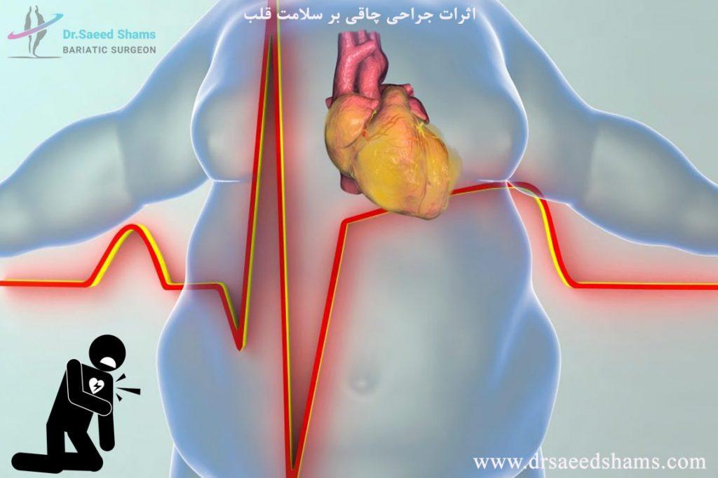 چاقی و بیماری قلبی و عروقی