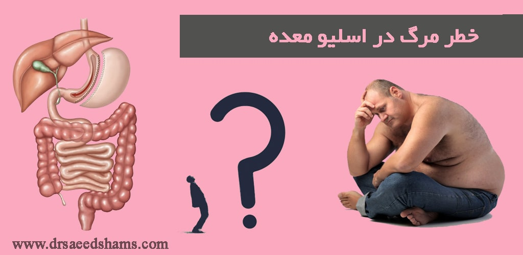 خطر مرگ در اسلیو معده