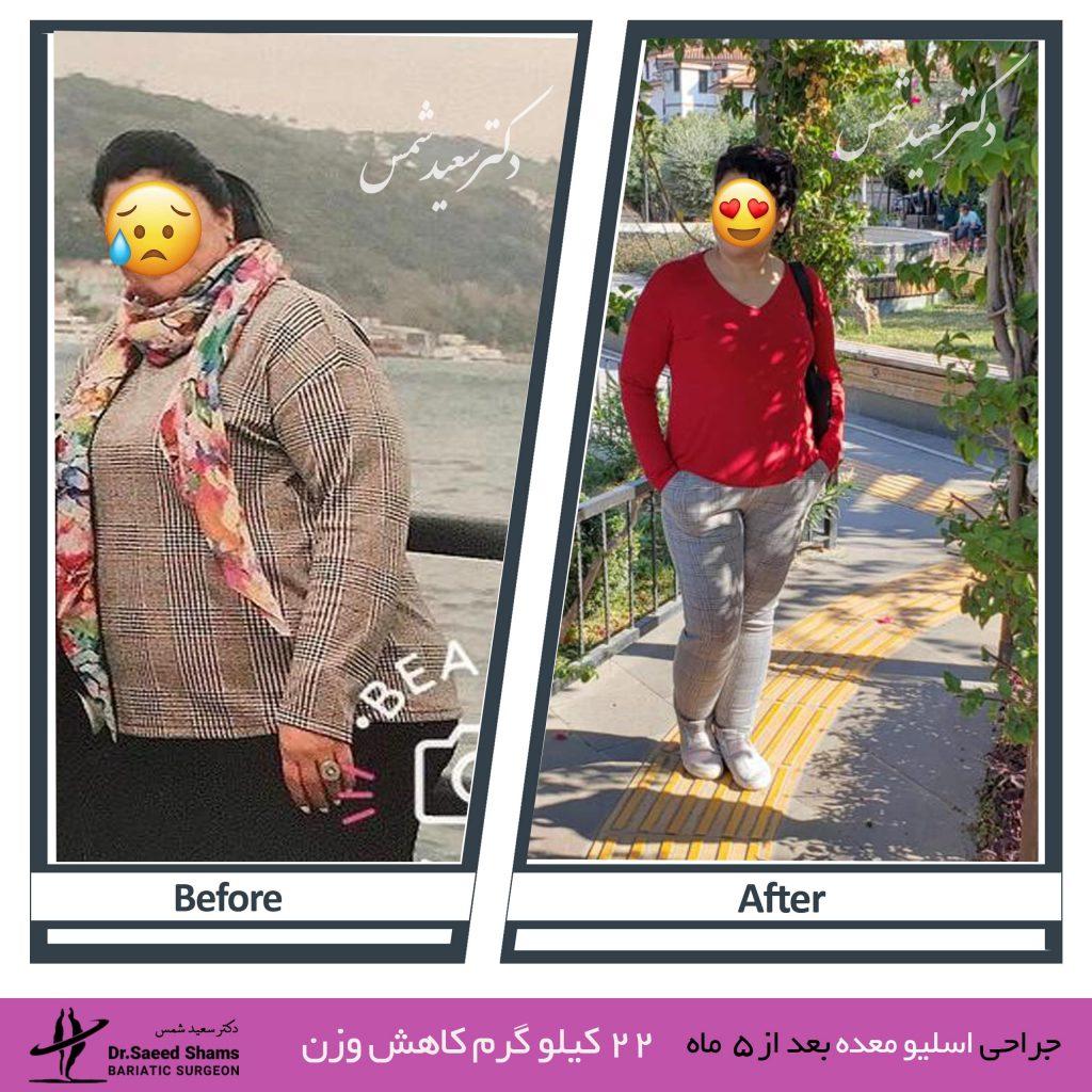 عکس قبل و بعد عمل اسلیو 15
