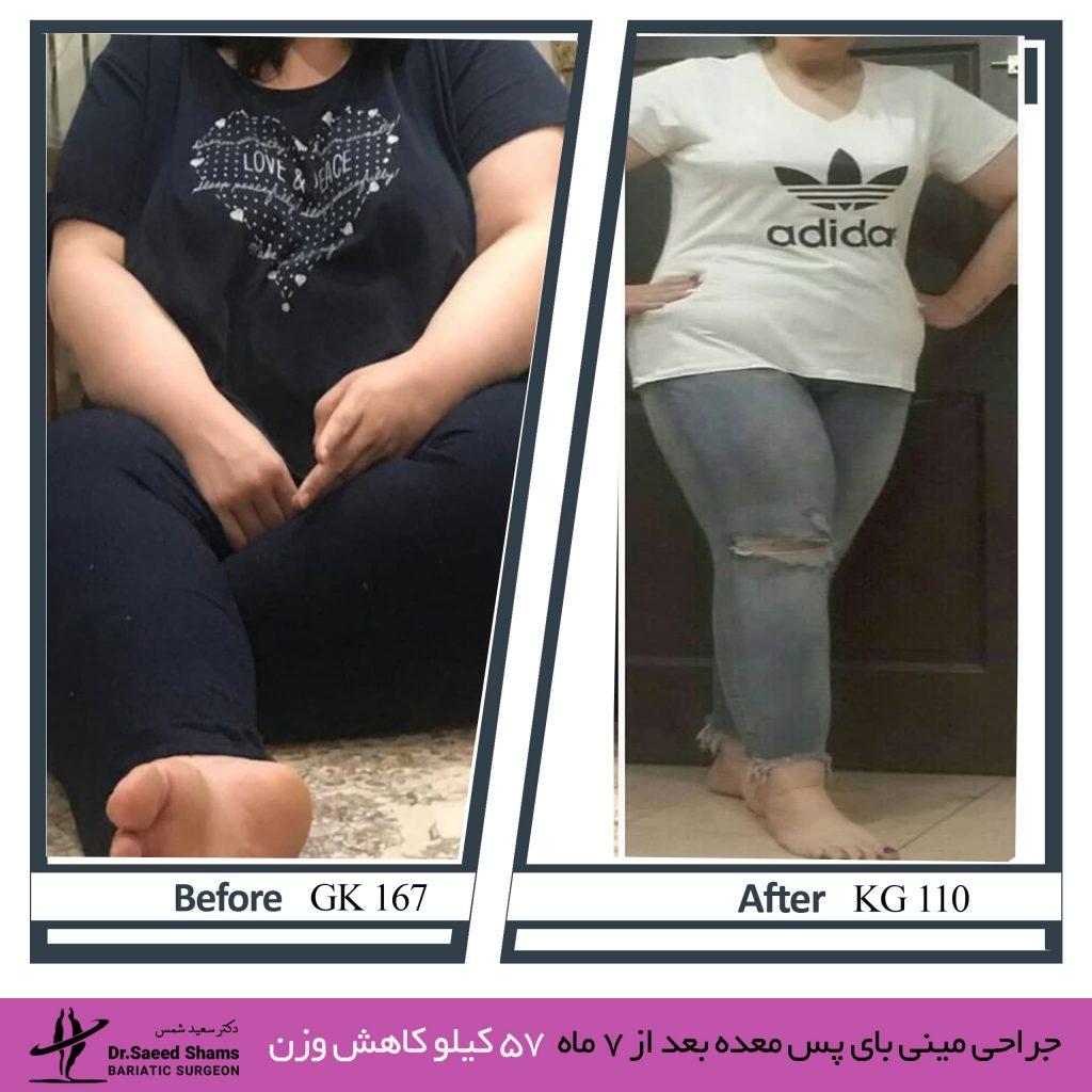 عکس قبل و بعد از عمل مینی بای پس معده