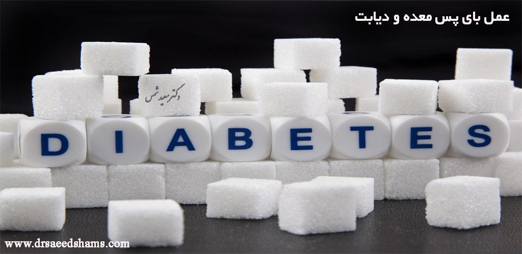 عمل بای پس معده برای دیابت