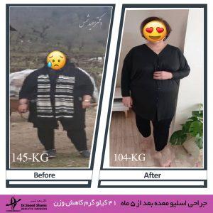 عکس قبل و بعد از عمل اسلیو 16