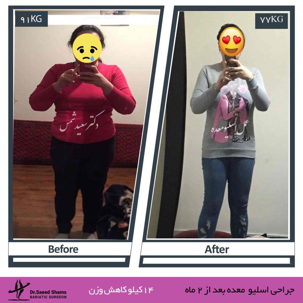 عکس قبل و بعد از عمل اسلیو معده 21