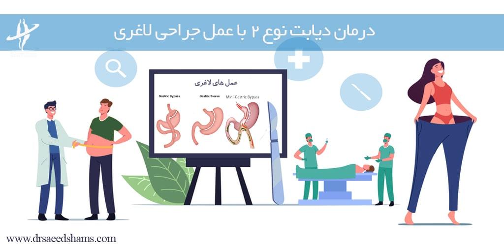 درمان دیابت توع دو با عمل لاغری