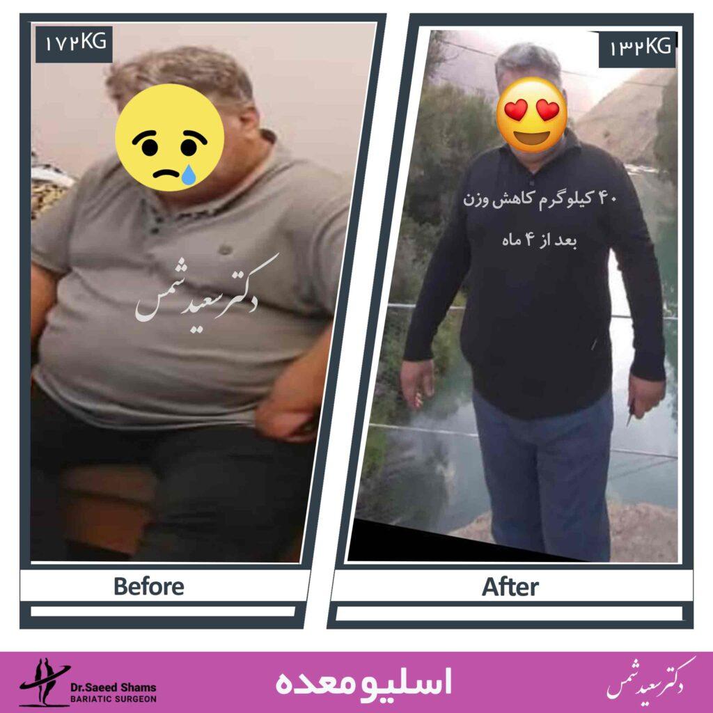 عکس قبل و بعد از عمل اسلیو معده22