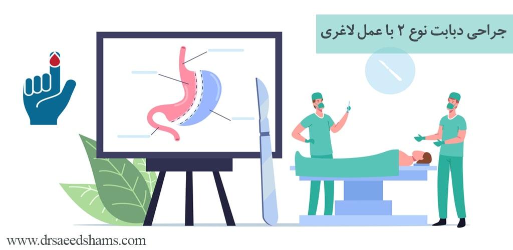 جراحی دیابت نوع 2 با عمل لاغری