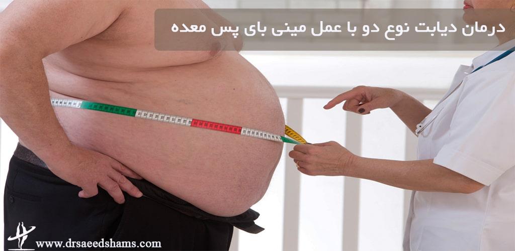 درمان دیابت نوع دو با عمل مینی بای پس معده