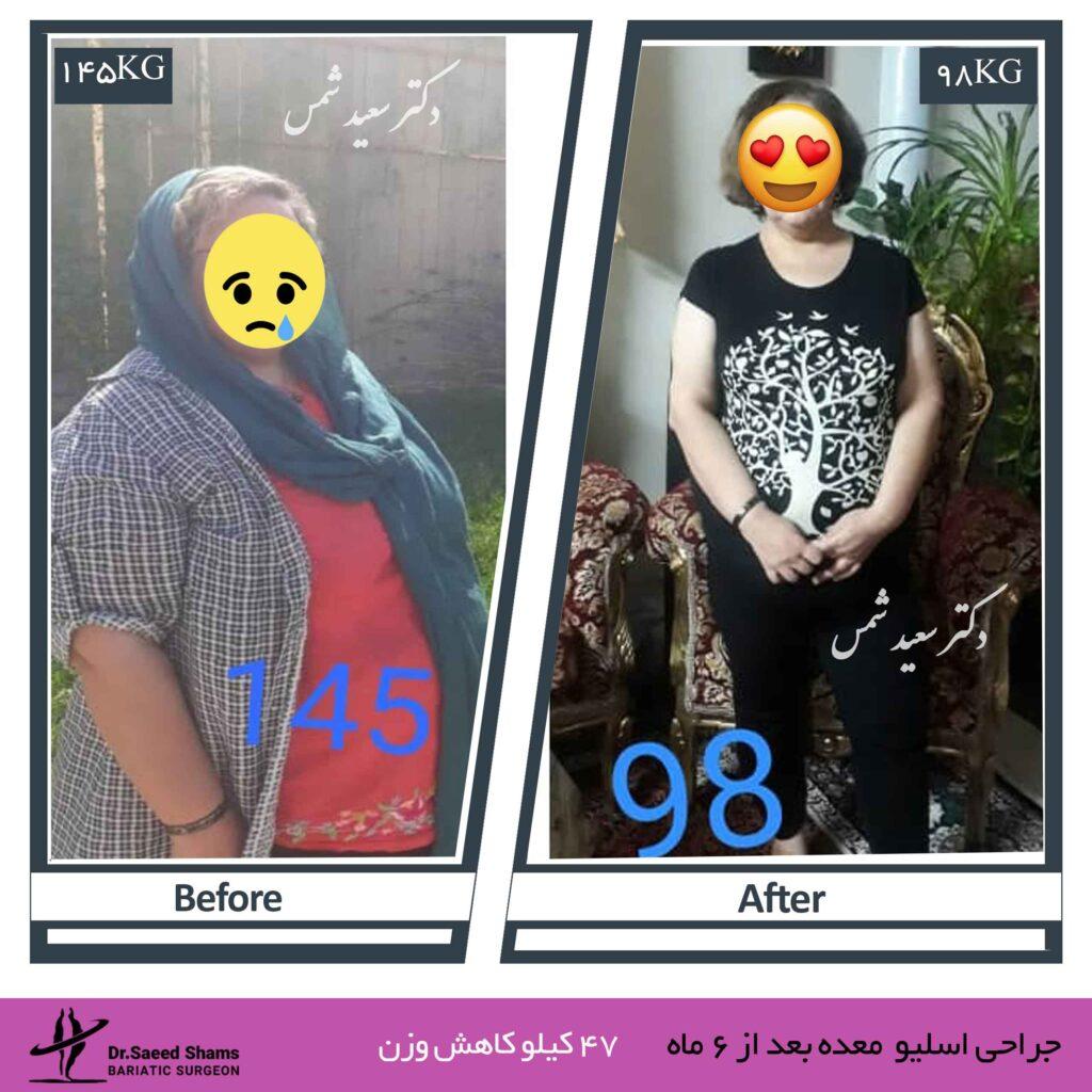 عکس قبل و بعد عمل اسلیو