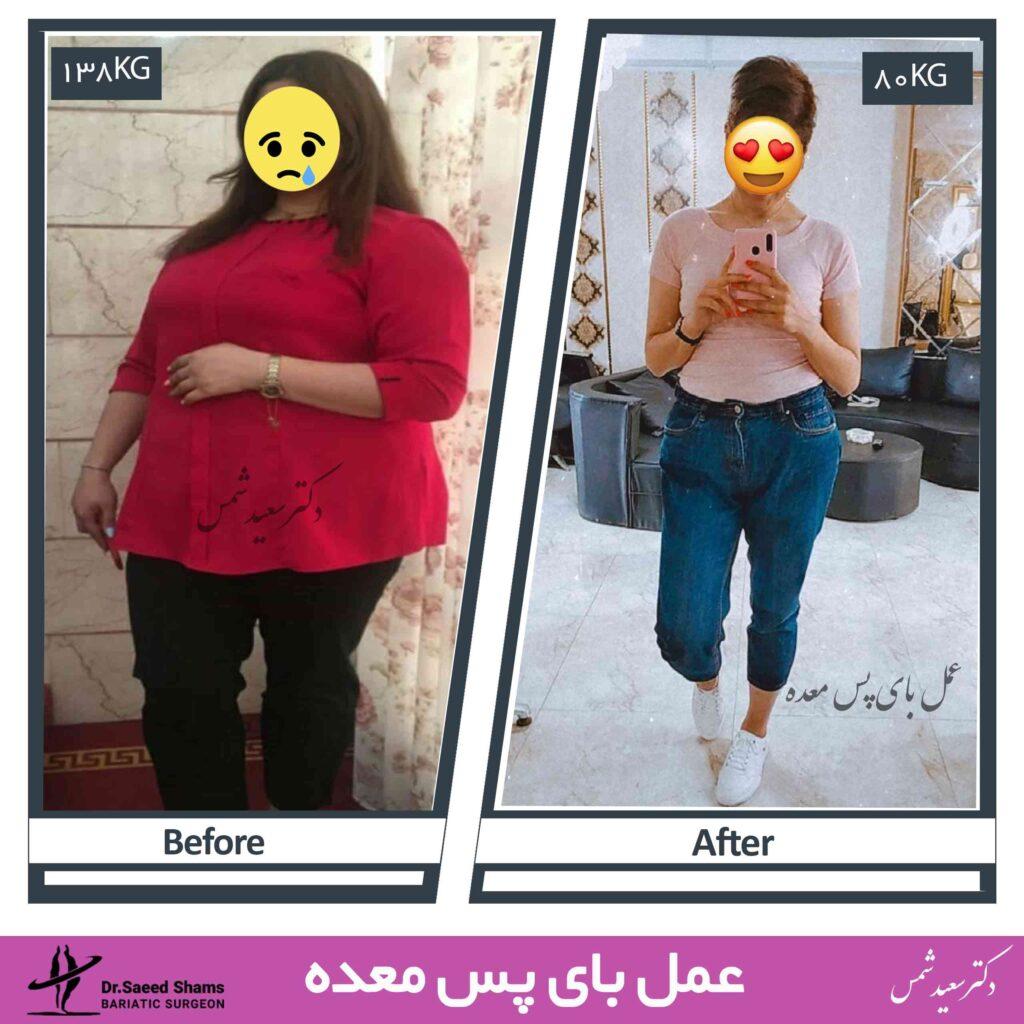 عکس قبل و بعد عمل بای پس 23