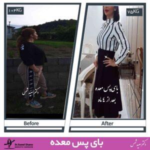 عکس قبل و بعد عمل بای پس معده