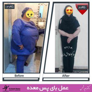 عکس قبل و بعد لاغری