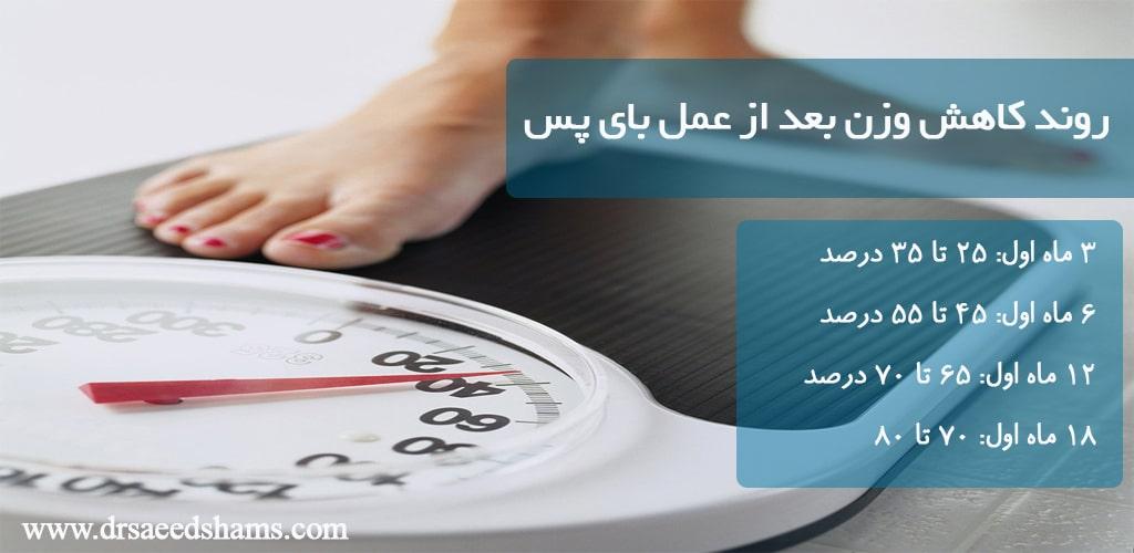 روند کاهش وزن بعد از عمل بای پس معده