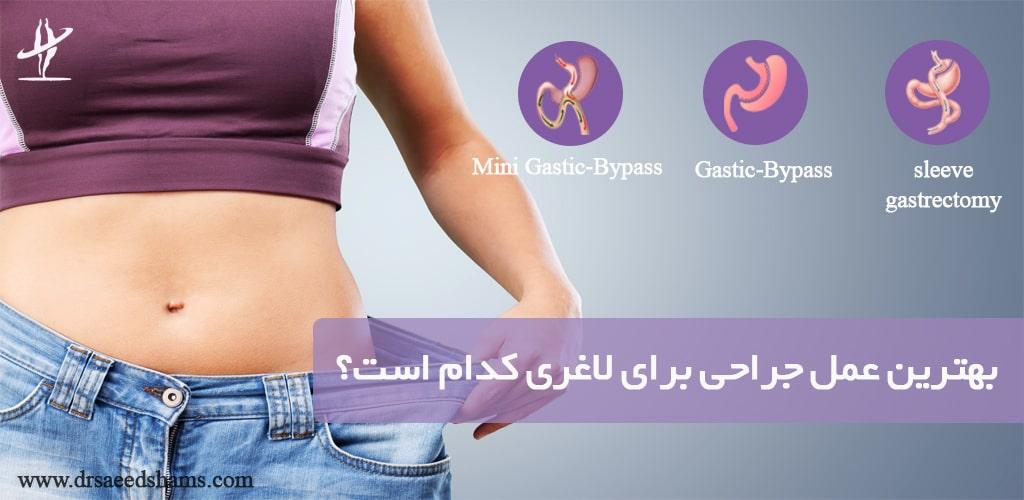 بهترین عمل جراحی برای لاغری