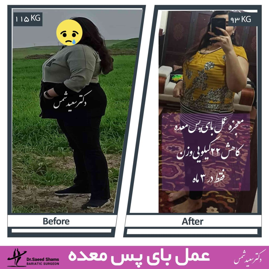 عکس قبل و بعد عمل بای پس