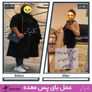 عکس قبل و بعد عمل بای پس کلاسیک