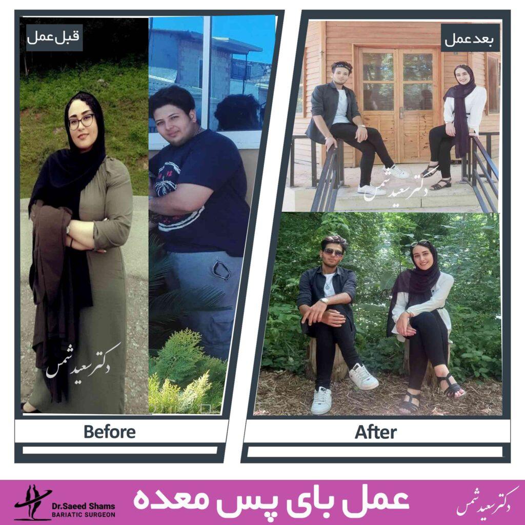 عکس قبل و بعد بای پس معده 34