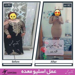 عکس قبل و بعد عمل اسلیو 35