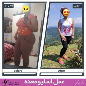 عکس قبل و بعد عمل اسلیو معده 38
