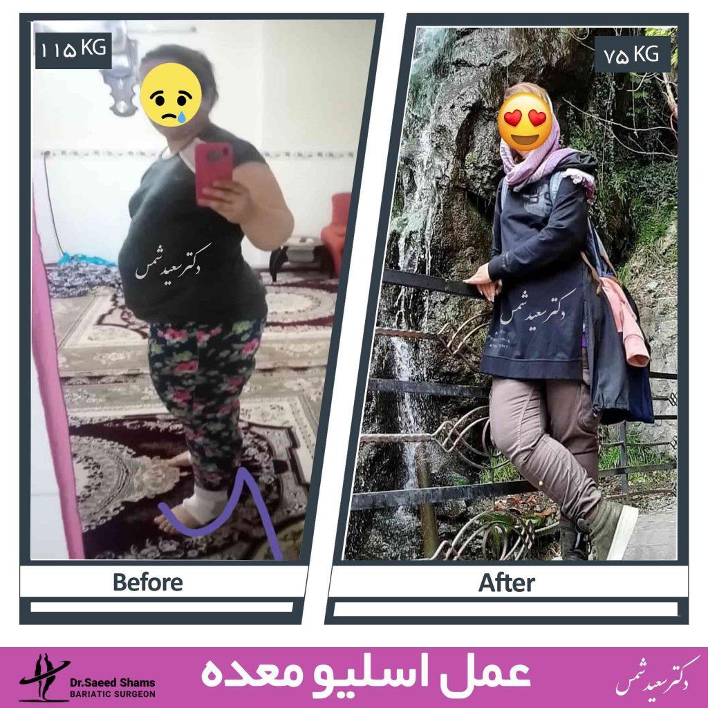 عکس قبل و بعد اسلیو معده